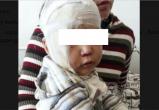 Вологжанин избивший своего 8-месячного сына, арестован и помещен в СИЗО