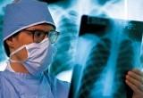 В Вологодской области стали реже умирать от туберкулеза